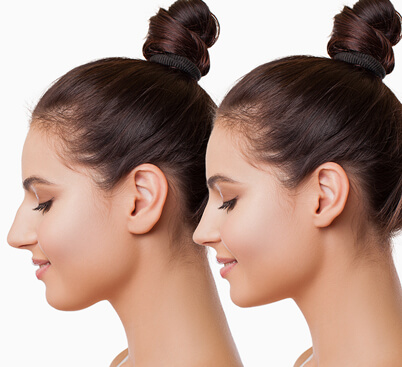 Non Surgical Nose Surgery (Rhinoplasty)