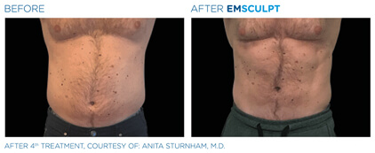 emsculpt before and after - image 003