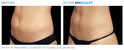 emsculpt before and after - image 005