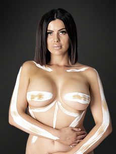 breast augmentation implants model - dr anh