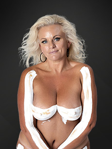 Breast reduction model 01, Dr Anh Perth