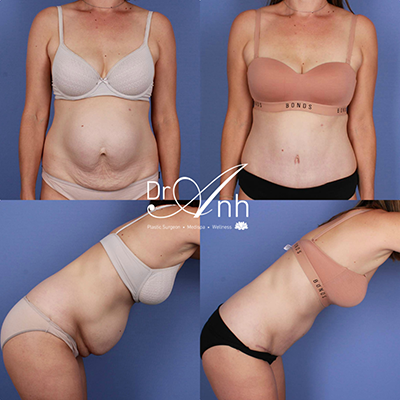 Tummy tuck gallery, patient before & post 6-months