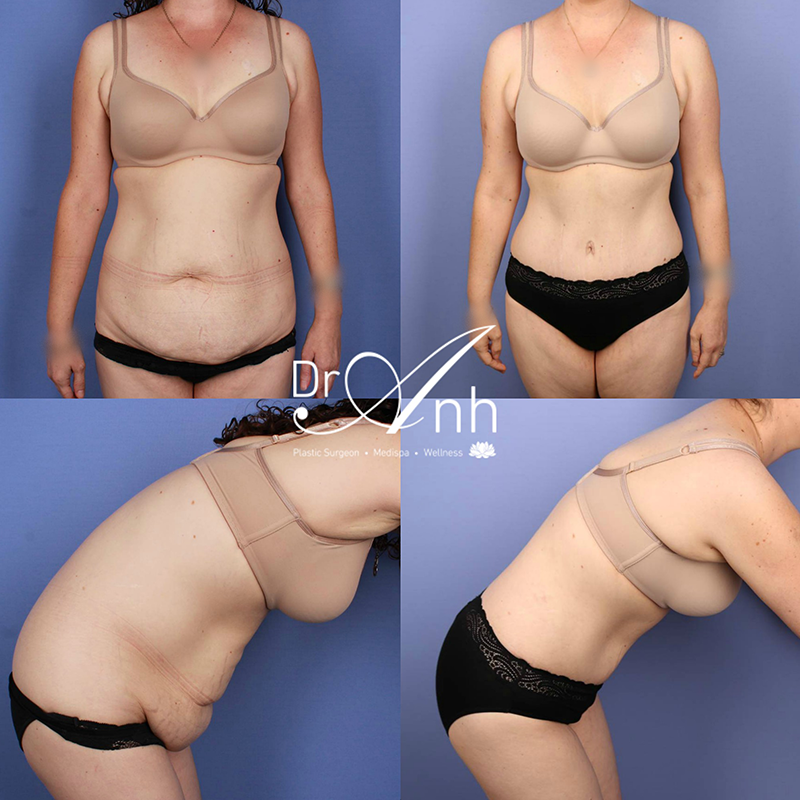 Tummy tuck gallery, before & after, image 3a
