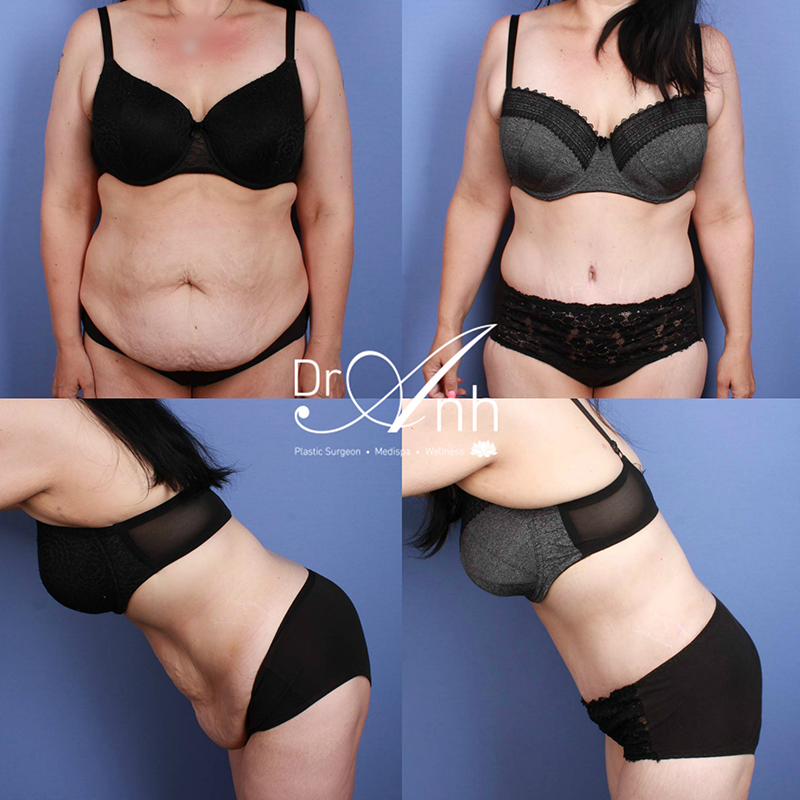 Abdominoplasty before and after, image 4a, Dr Anh