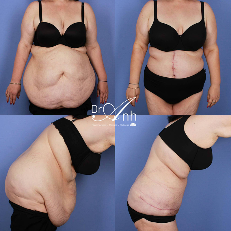 Tummy tuck before and after, image 7a