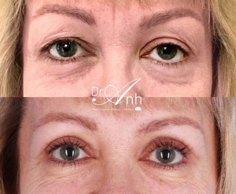 Blepharoplasty surgery before and after, photo 01, 2x size