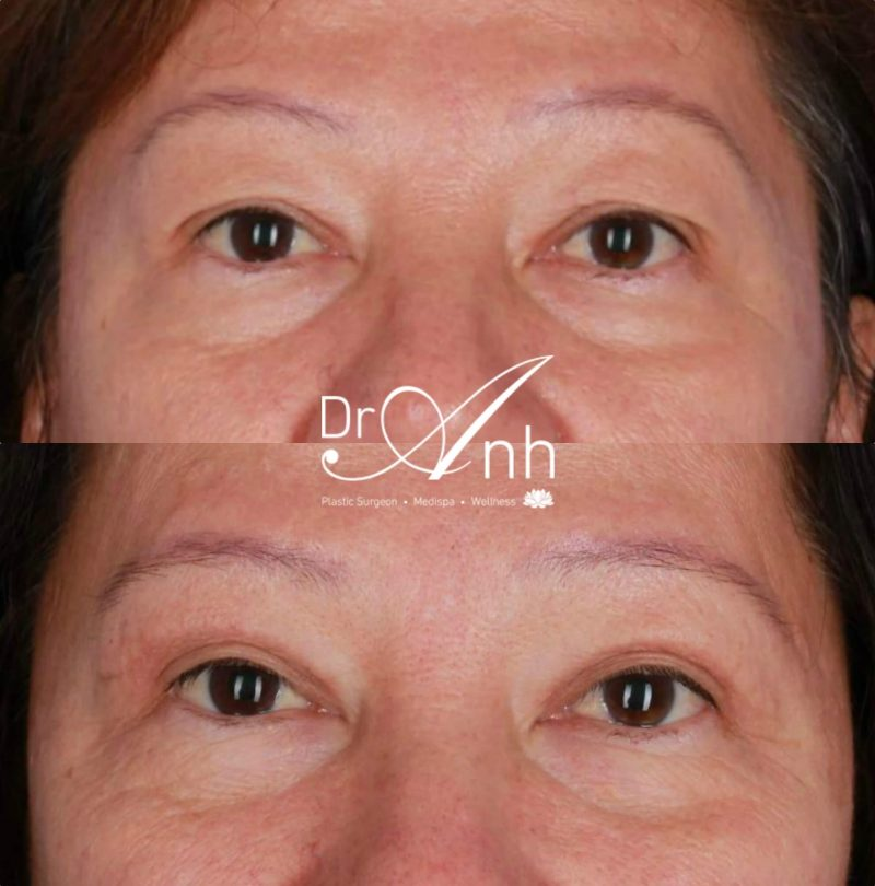 Eyelid surgery before and after, patient photo 02, 2x size