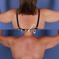 Brachioplasty surgery before and after, image 01