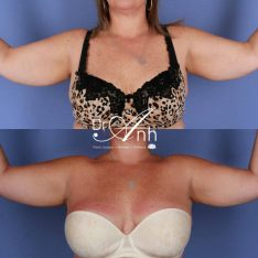 Arm lift before and after, image 02