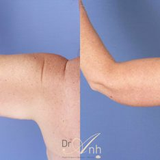 Brachioplasty image gallery, patient photo 04, Dr Anh Perth
