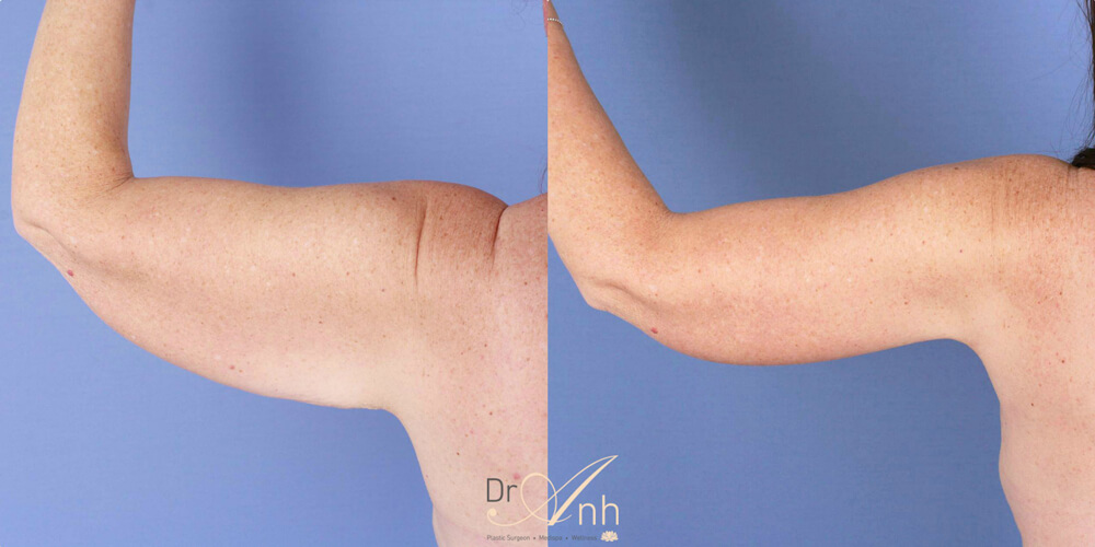 Arm lift before and after, photo 04, Dr Anh