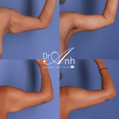 Patient before and after brachioplasty with Dr Anh, image 05