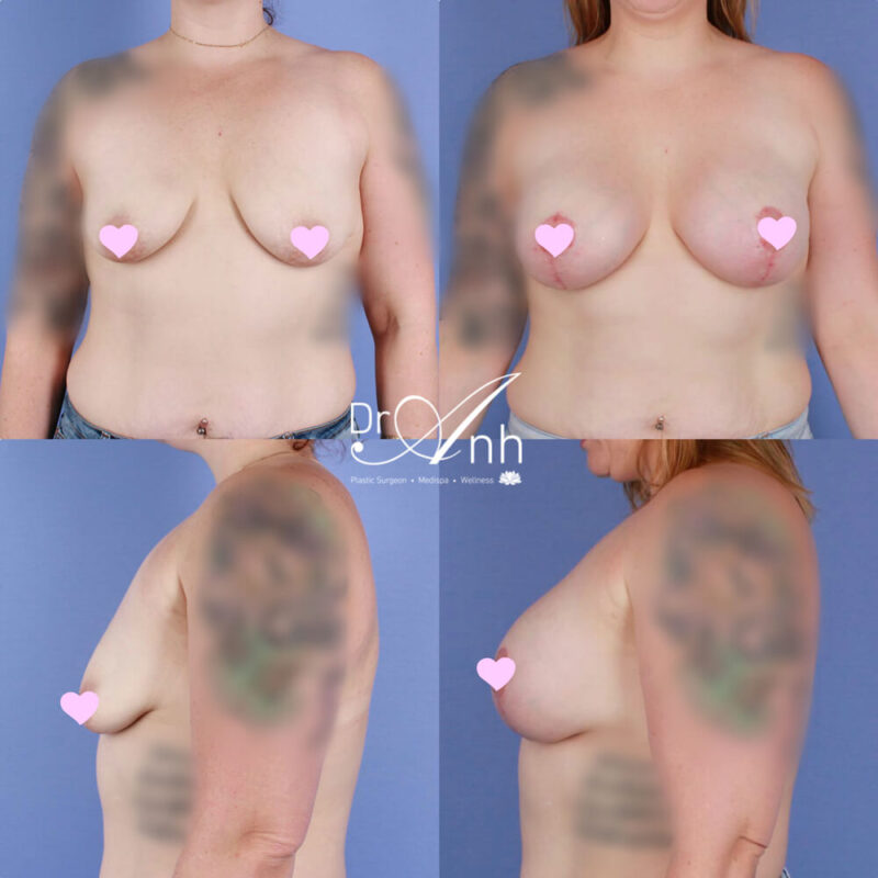 Breast augmentation and lift before and after, image 02
