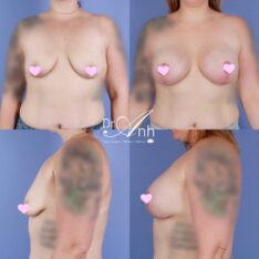 Breast augmentation and lift, before and after, gallery photo 02