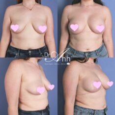Breast lift with implants (augmentation), photo 05, Dr Anh Perth