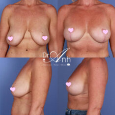 Breast reduction gallery, photo 01, a patient before & after the procedure