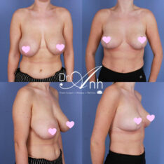Breast reduction and lift, surgery results, image 02