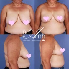 Breast reduction with lift, photo 04, before & after
