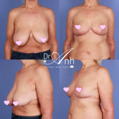 Mastopexy surgery gallery, image 05, surgery results, Dr Anh Perth