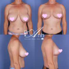 Dr Anh's patient before and after breast reduction, photo 06