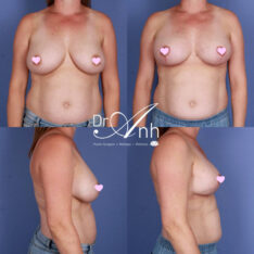 Patient's results after breast reduction plastic surgery, photo 09