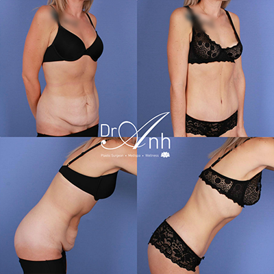 Tummy tuck images, before & afters, CJ 6 months