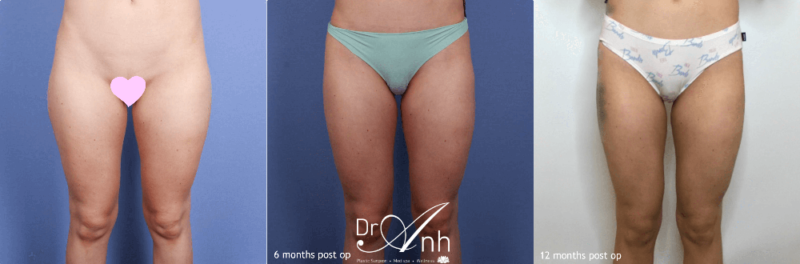 Liposuction before and after, photo 01