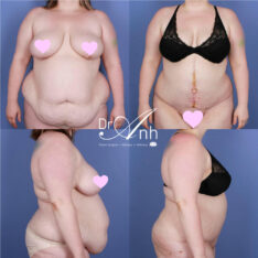 Tummy tuck before and after, image 01