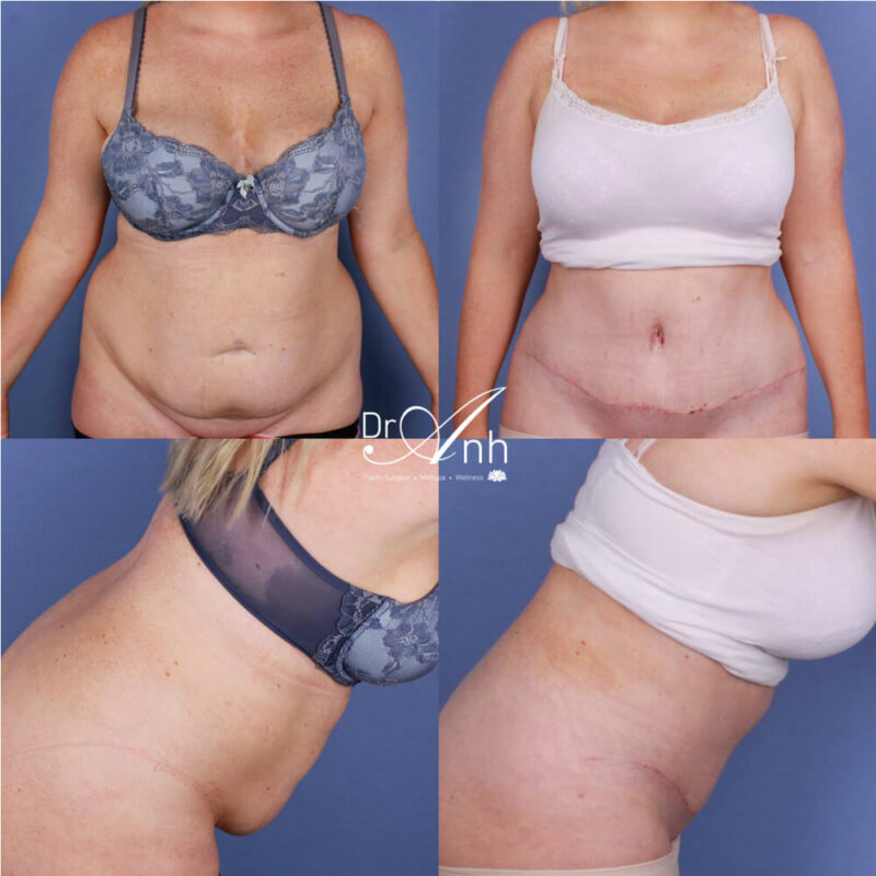 Tummy tuck surgery, before and after, photo 10