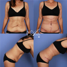 Abdominoplasty before and after, gallery image 12
