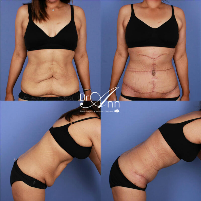 Abdominoplasty at Dr Anh clinic, photo 12