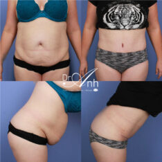 Tummy tuck photo 13, image before and after the surgery (results)