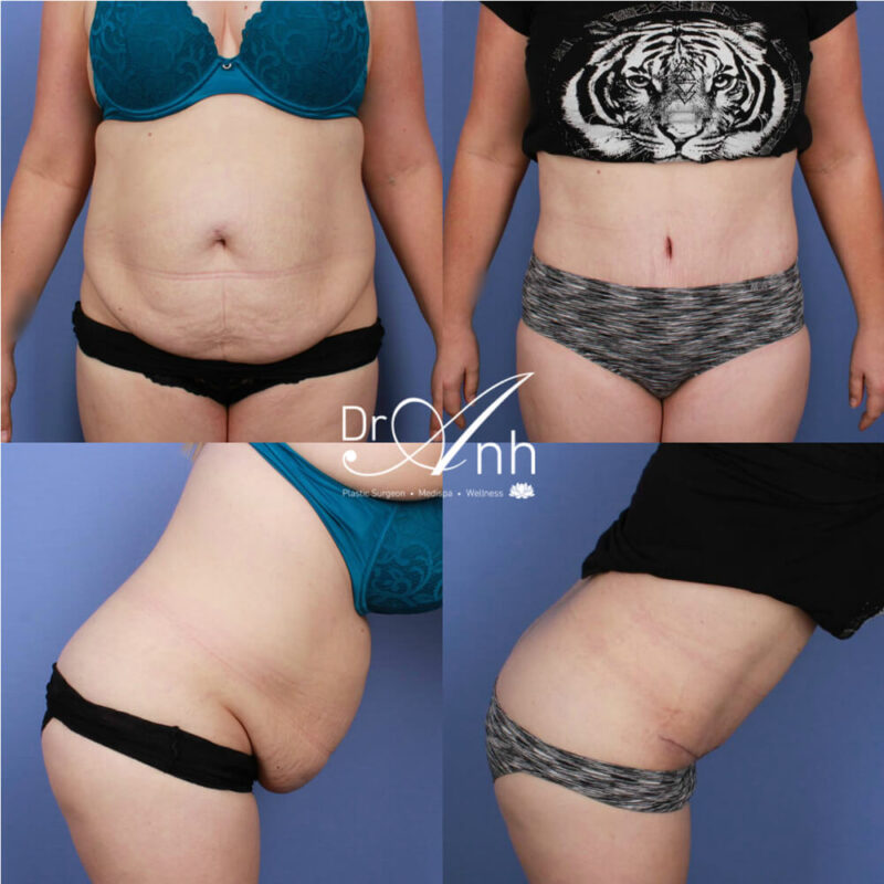Tummy tuck gallery, before & after photo 13