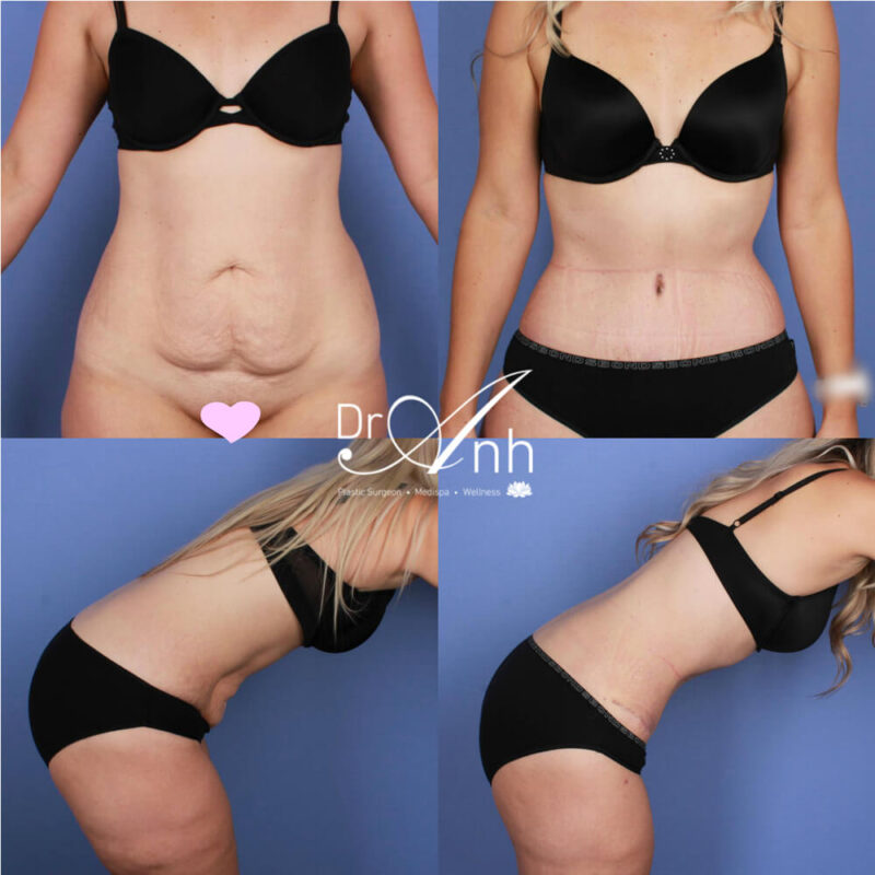 abdominoplasty14