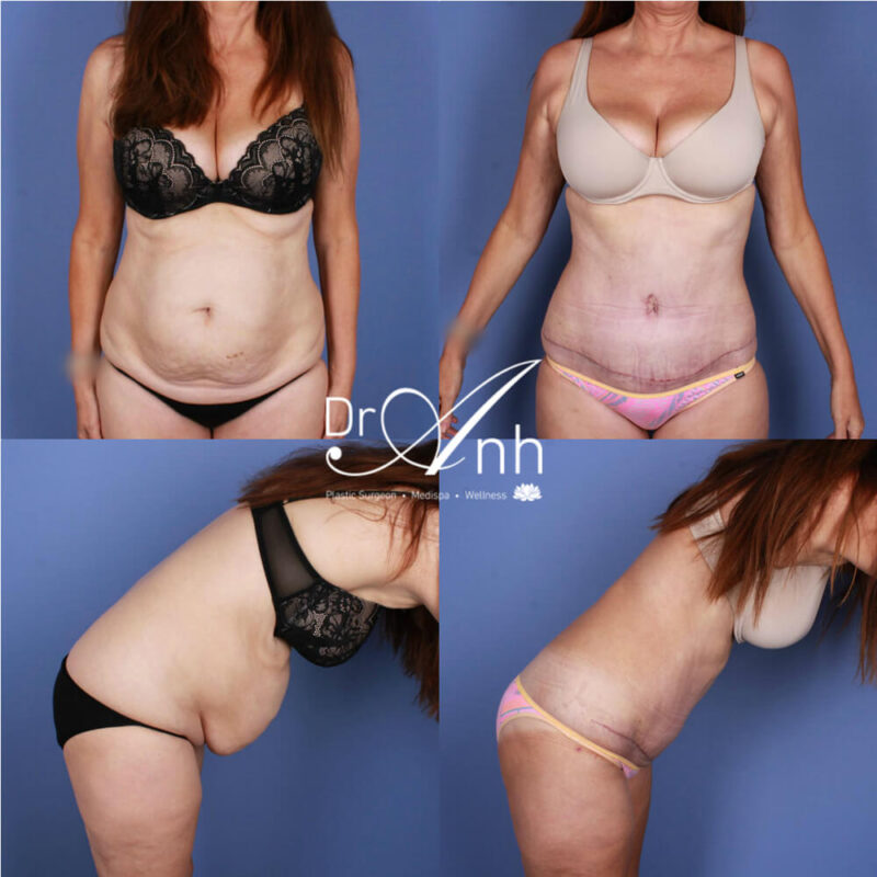 Tummy tuck results, gallery photo 15