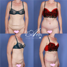 Abdominoplasty photo 16, real patient of Dr Anh, surgery results