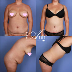 Abdominoplasty surgery, photo 17, patient before and after tummy tuck