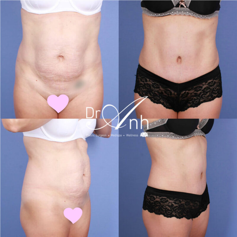 Abdominoplasty patient, photo 18, Dr Anh