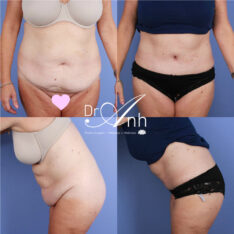 Abdominoplasty surgery in Perth, photo 19, Dr Anh female plastic surgeon