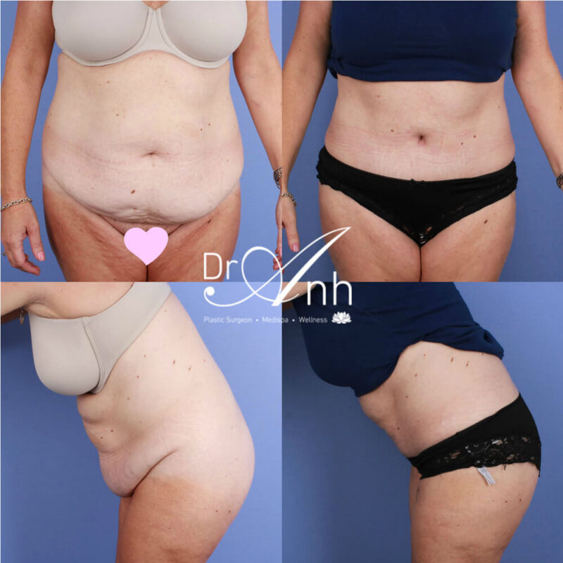 Abdominoplasty plastic surgery results, photo 19