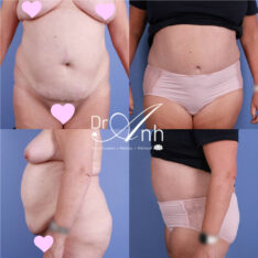 Abdominoplasty before and after photo 02, Dr Anh Perth