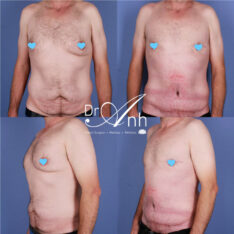 Tummy tuck patient, image 20, before & after, Dr Anh plastic surgery