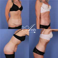 Dr Anh, patient before and after tummy tuck, photo 03