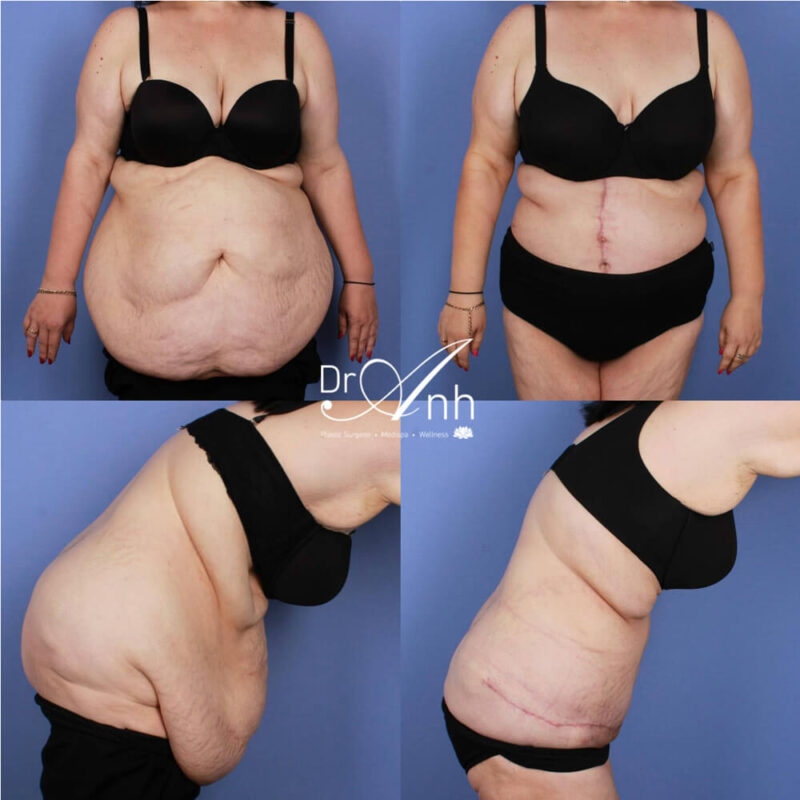 A patient before and after tummy tuck with Dr Anh, photo 04