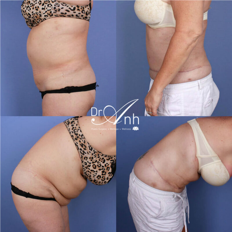 Abdominoplasty before & after, patient photo 07