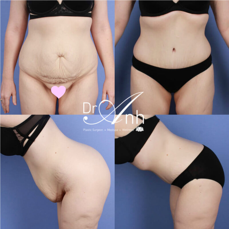 Tummy tuck patient before and after surgery (results), photo 08