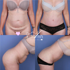 Tummy tuck gallery, image 09, Dr Anh plastic surgery Perth