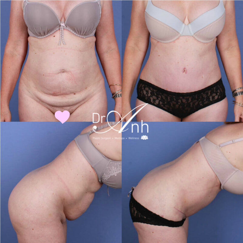 Dr Anh, tummy tuck surgery results, photo 09