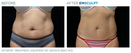 emsculpt before and after - image 001