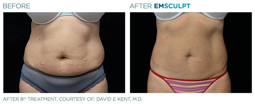 emsculpt before and after 01 - front view - female patient